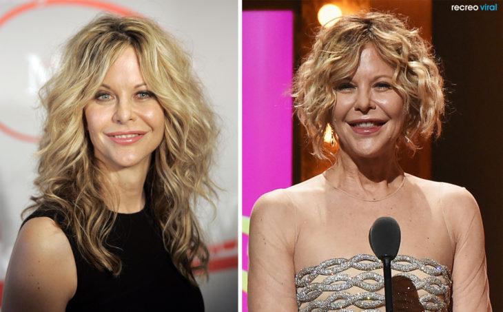 Cirugías. Meg Ryan antes y después