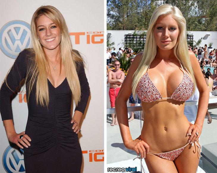 Cirugías. Heidi Montag antes y después