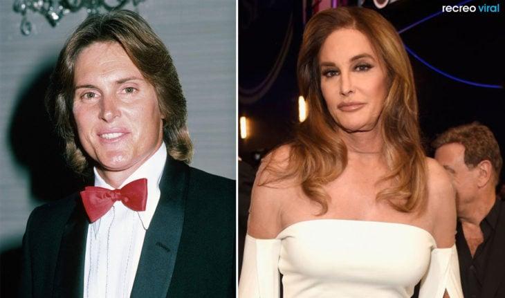 Cirugías. Bruce Jenner y Caitlyn Jenner