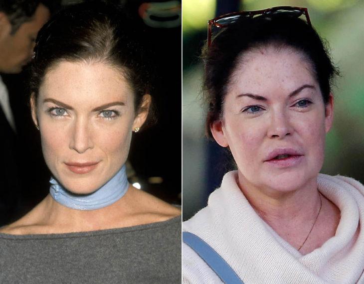 Cirugías. Lara Flynn Boyle antes y después