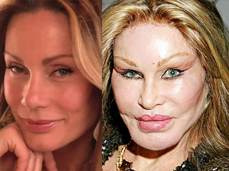 antes y después de un cirugía