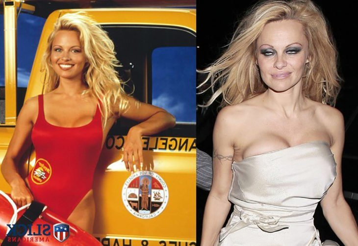 pamela anderson antes y después