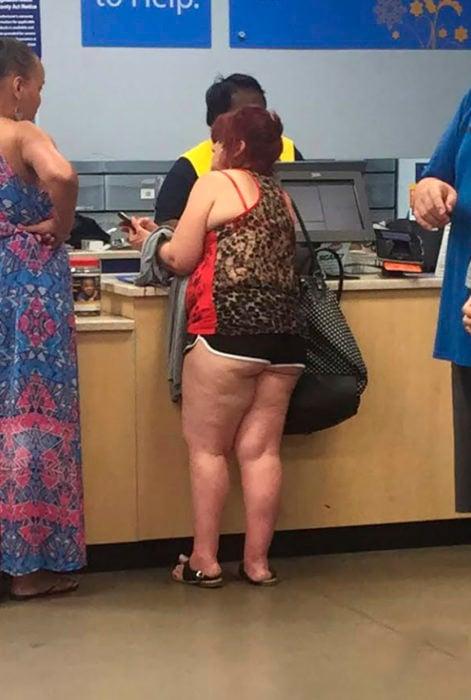 señora con celulitis en pantalones cortos