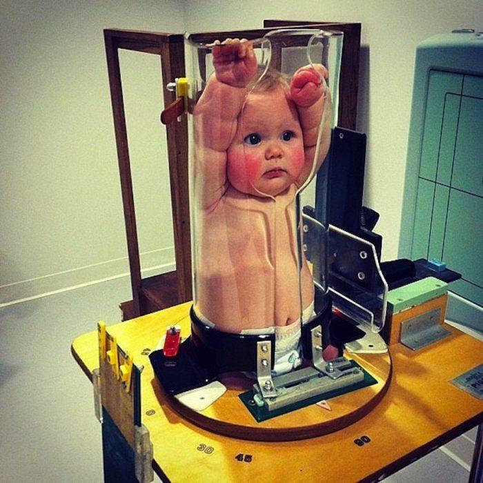 bebé en aparato para rayos x