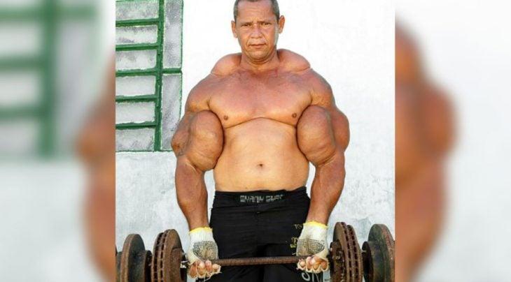 hombre que tomo esteroides