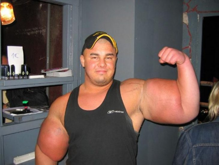 brazos deformes debido a esteroides