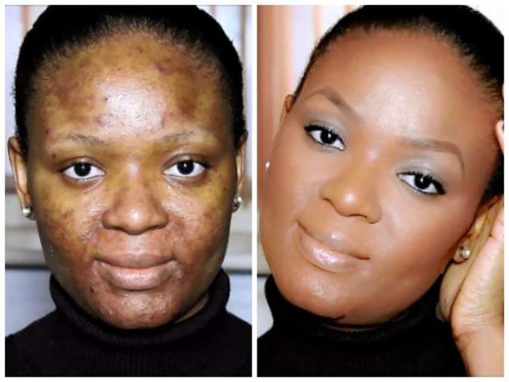 mujer con acné transformación de maquillaje