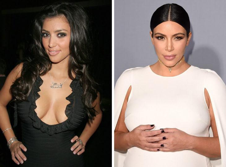 kim kardashian antes y después