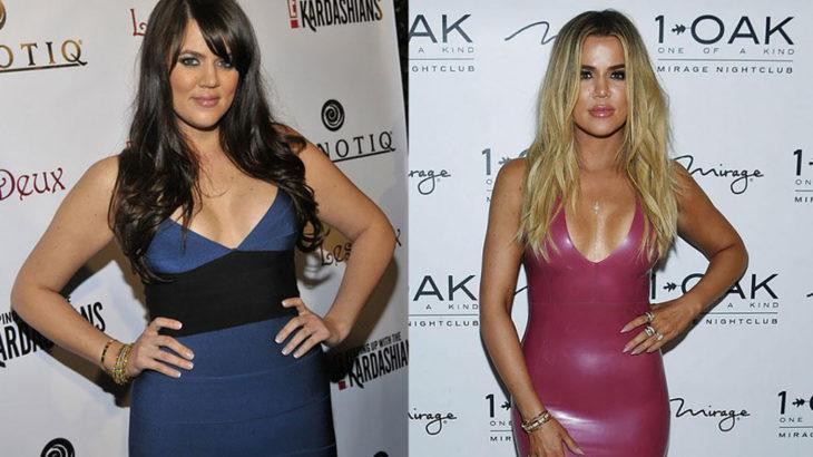 khloe kardashian antes e depois