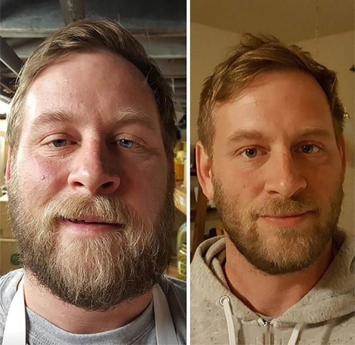hombre rubio con barba antes y después de dejar de beber