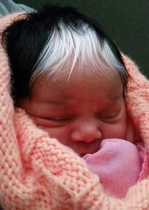 bebé con mechon de cabello blanco