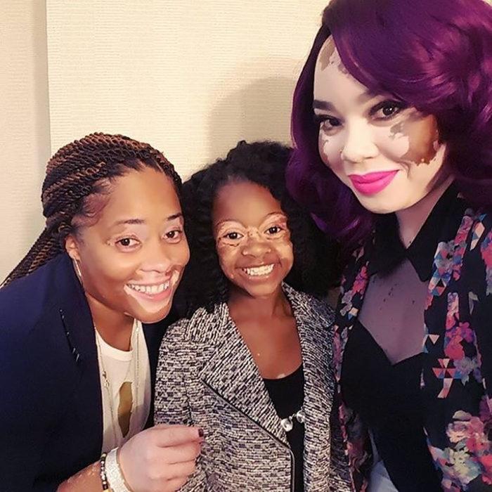 tres mujeres con vitiligo