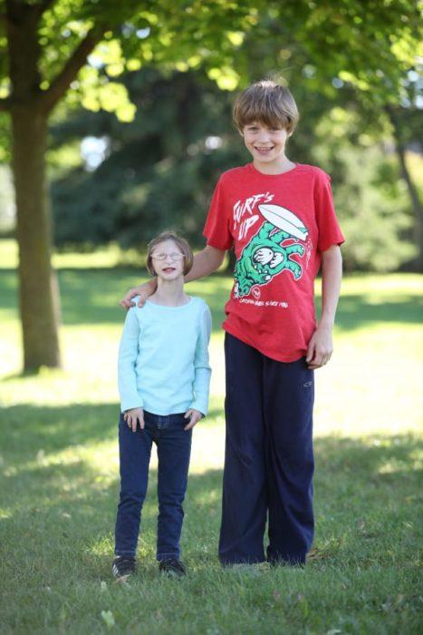 niña con enanismo y su hermano