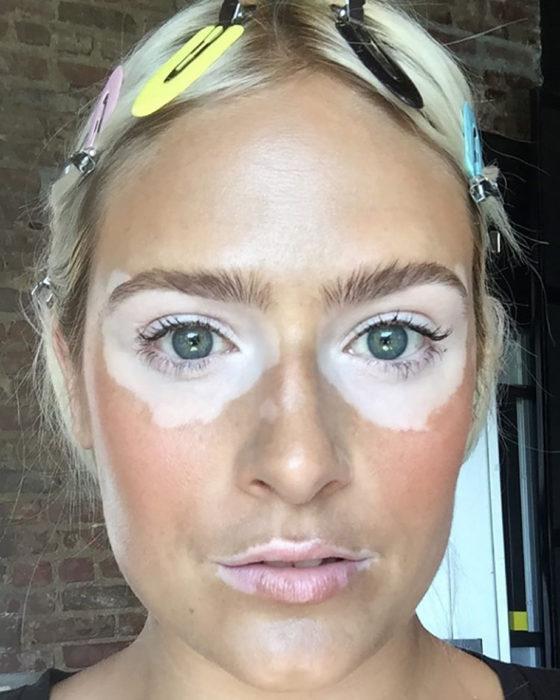 mujer con vitiligo en los ojos