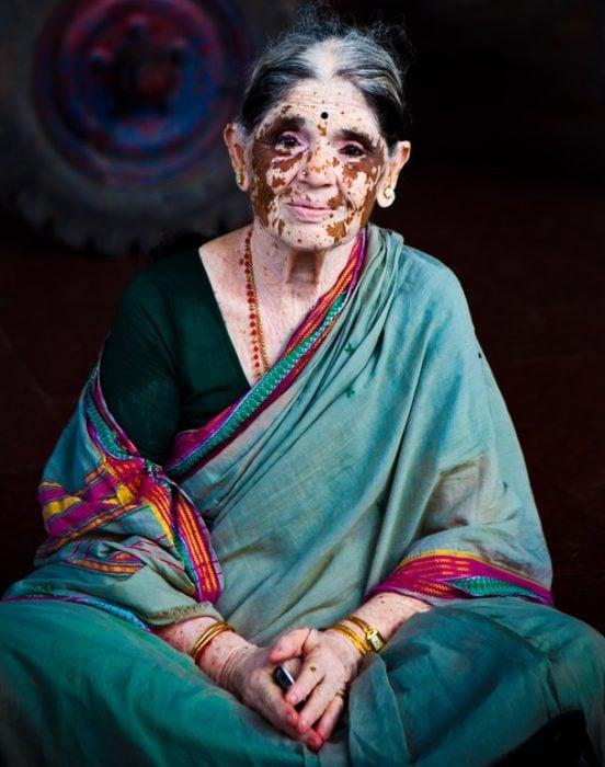 mujer de la india con vitiligo