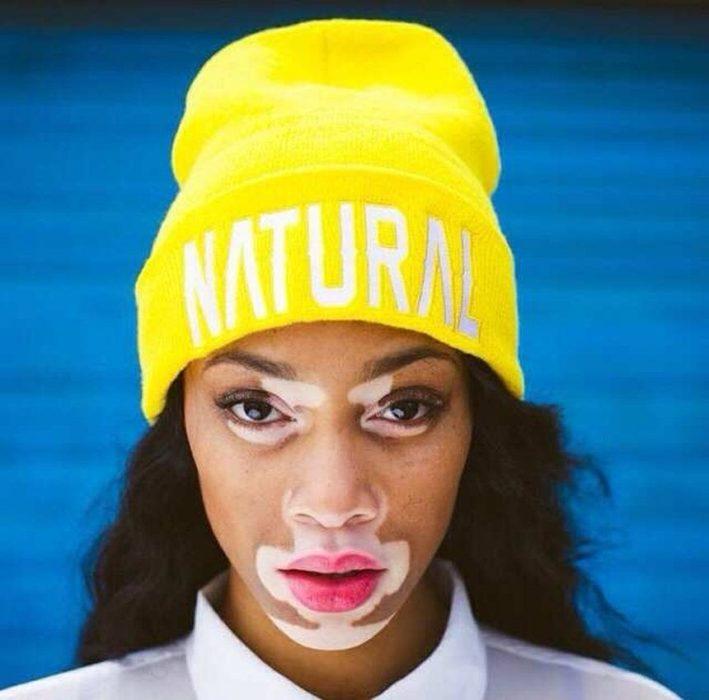 chica con vitiligo y sombrero amarillo