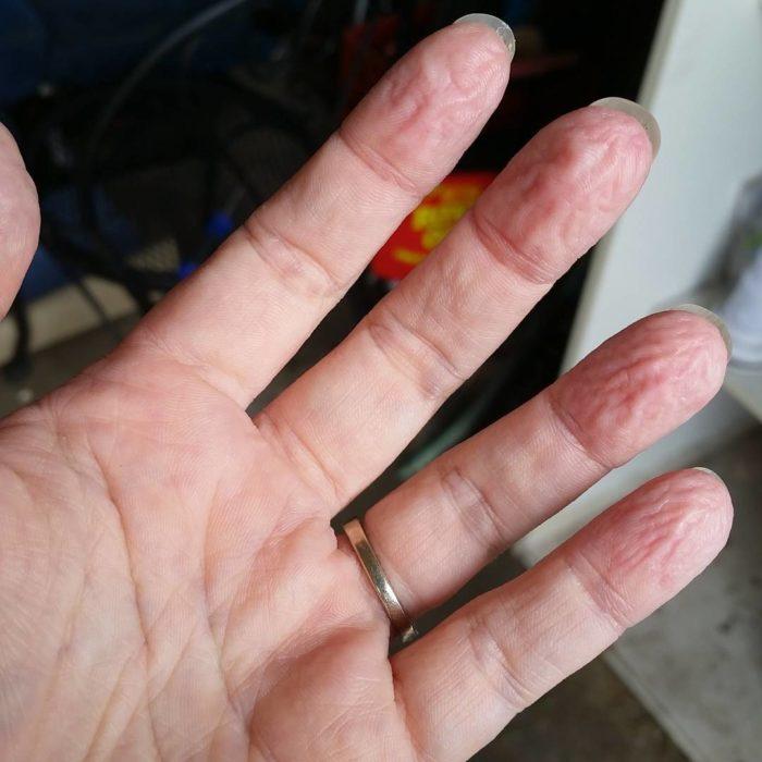 piel de los dedos arrugada