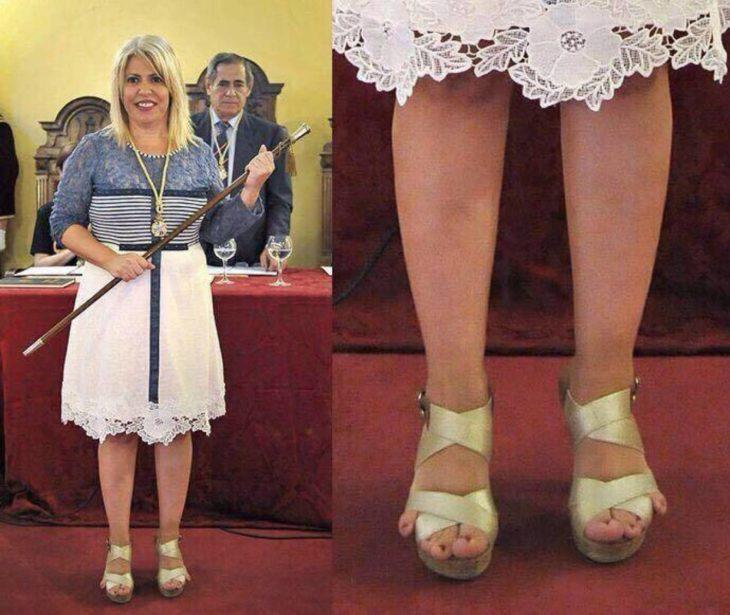 Una mujer que usa sandalias que no son de su talla