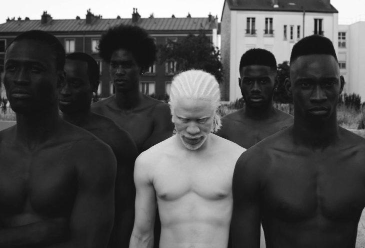 Hombre albino al lado de hombres negros