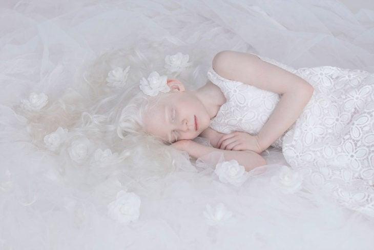 Niña albina dormida