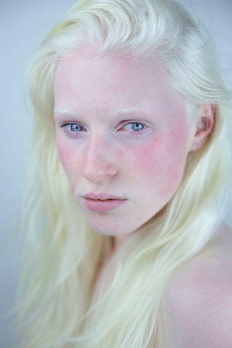 Mujer albina rostro rojizo