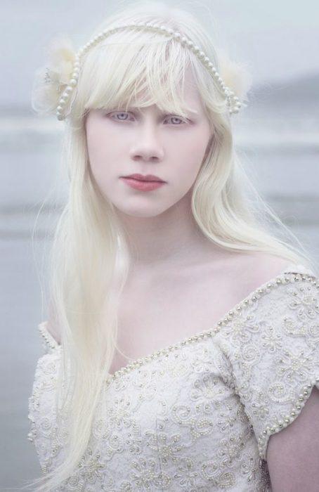 Chica albina