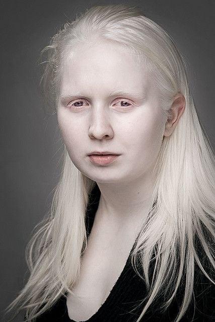 Joven albina