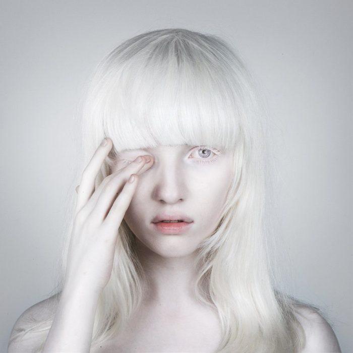 Mujer albina con un ojo cerrado