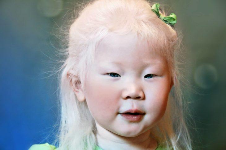 Niña albina ojos azules