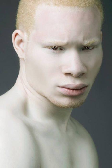 Hombre albino