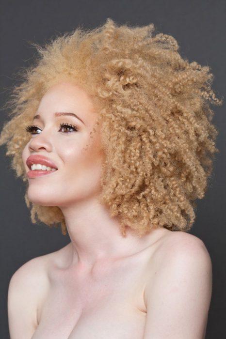 Mujer albina cabello rizado