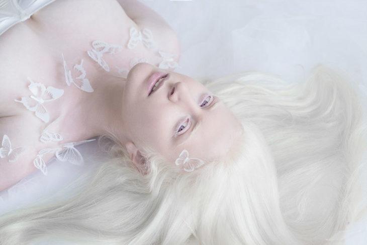 Mujer albina acostada
