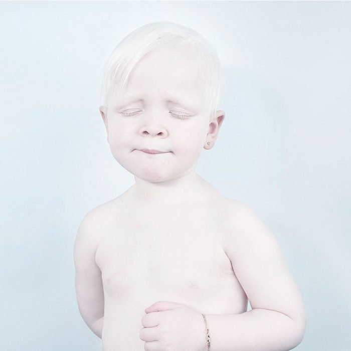 Niño albino con ojos cerrados