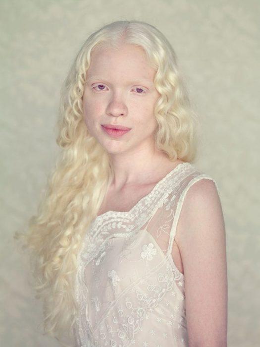 Niña albina viendo a la cámara