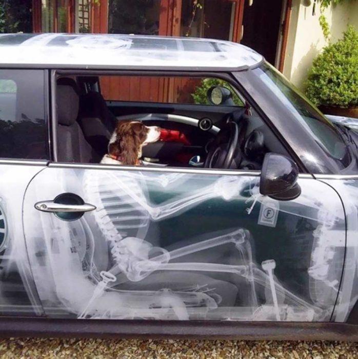 carro de rayos x