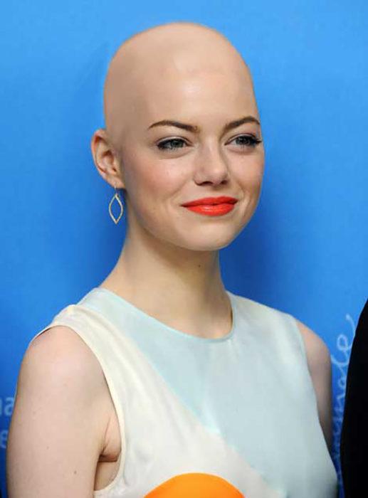 Emma Stone calva