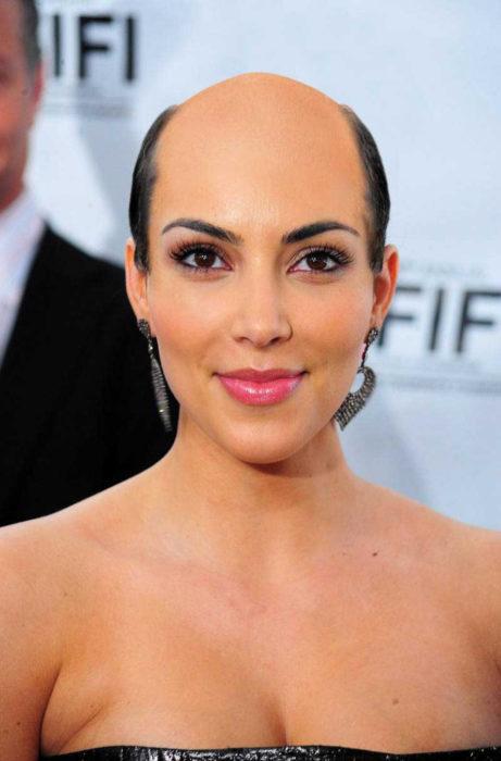 Kim Kardashian calva