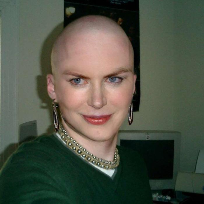 Nicole Kidman calva