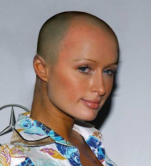 Paris Hilton calva