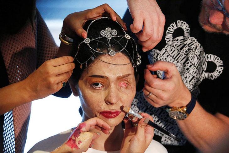 mujer con la cámara quemada con ácido es maquillada