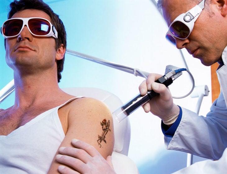 borrar tatuajes con laser