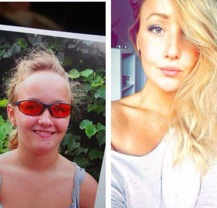 muchacha se pone bonita luego de la pubertad