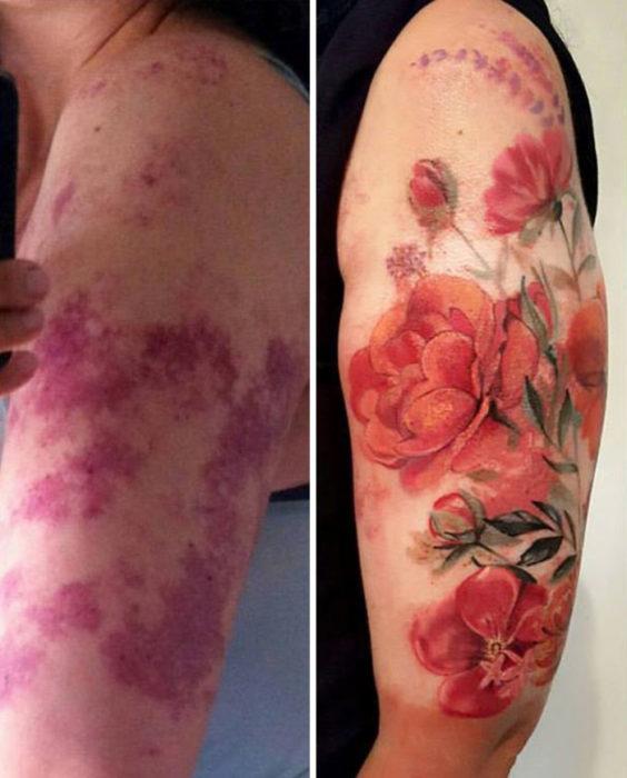 10 tatuajes cicratices creativos 7