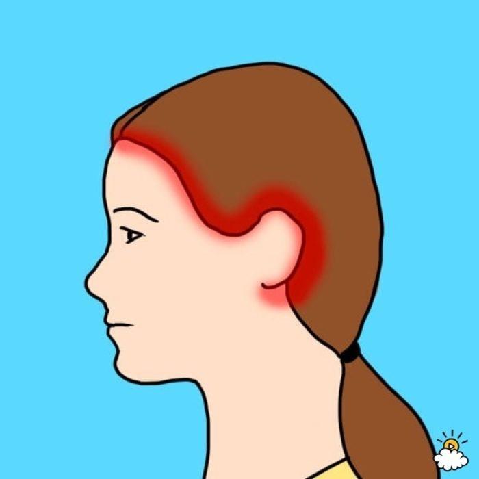 10 tipos de dolor de cabeza 10