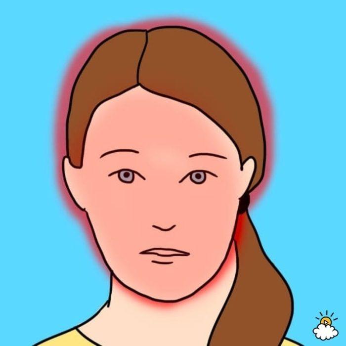 10 tipos de dolor de cabeza 5