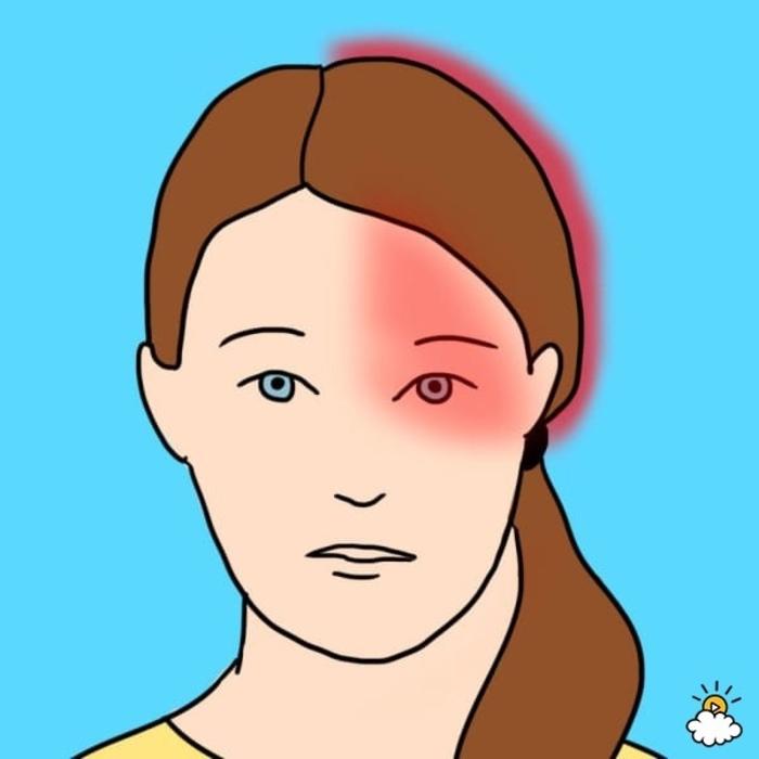 10 Tipos de dolores de cabeza y lo que dicen de tu salud