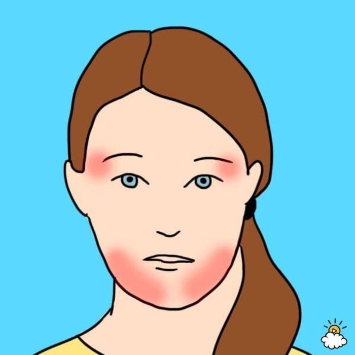 10 tipos de dolor de cabeza 8