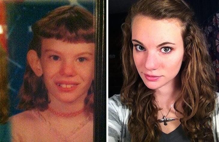 niña orejona antes y después de la pubertad