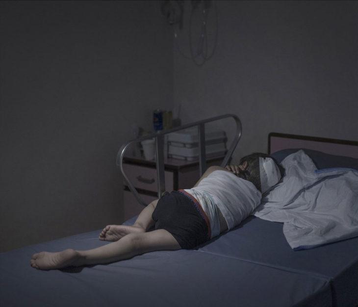 Niño sirio con herida en la cabeza dormido en hospital