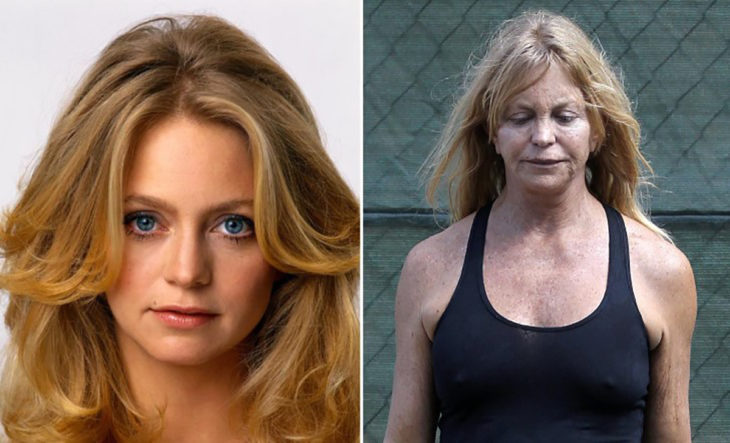 goldie hawn antes y después